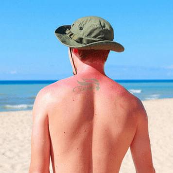 آفتاب سوختگی این ۱۹ روش موثر 1883 - در گرمای هوا مراقب آفتاب سوختگی باشید.
